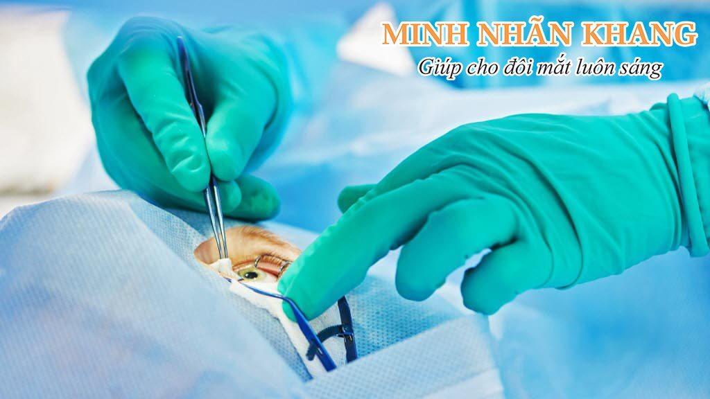 Người bệnh đục thủy tinh thể hoàn toàn nên phẫu thuật sớm